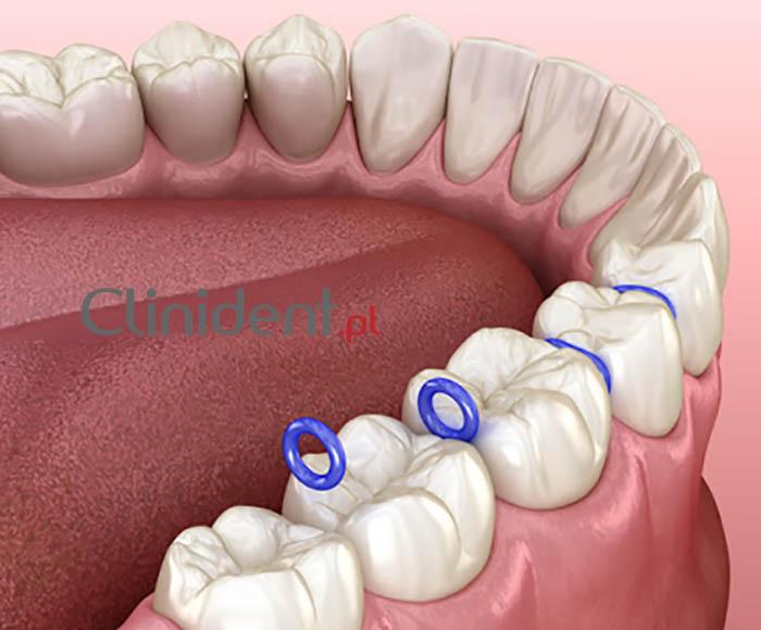 separowane zęby przed