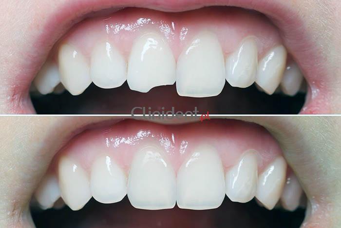 złamany ząb wrocław