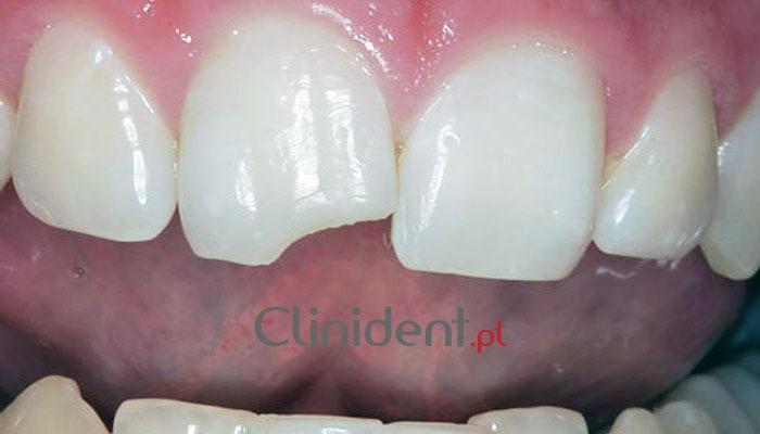 złamany ząb stomatolog