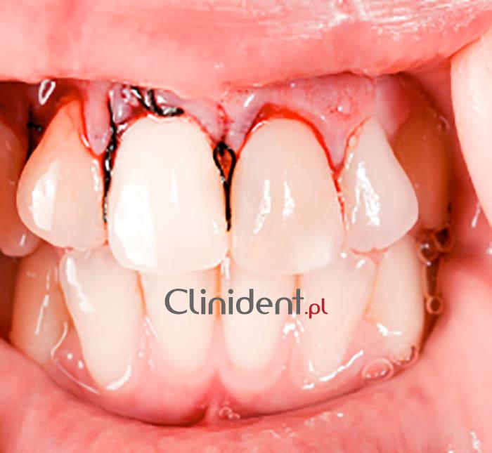 wybity ząb w górę żuchwy
