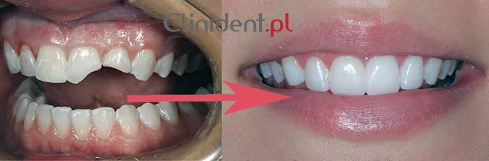 porcelanowy ząb, licówka z