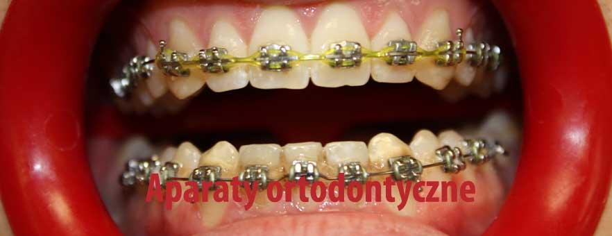 Aparat ortodontyczny bez usunięcia zębów, bez wyrywania zęba. Aparaty Damon na zatrzaski - ortodoncja Wrocław