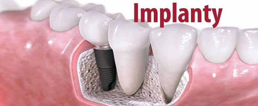 Implant zęba z tytanu - implantologia. Sztuczne zęby, czyli implanty dentystyczne we Wrocławiu. Implanty stomatologiczne w leczeniu zębów.