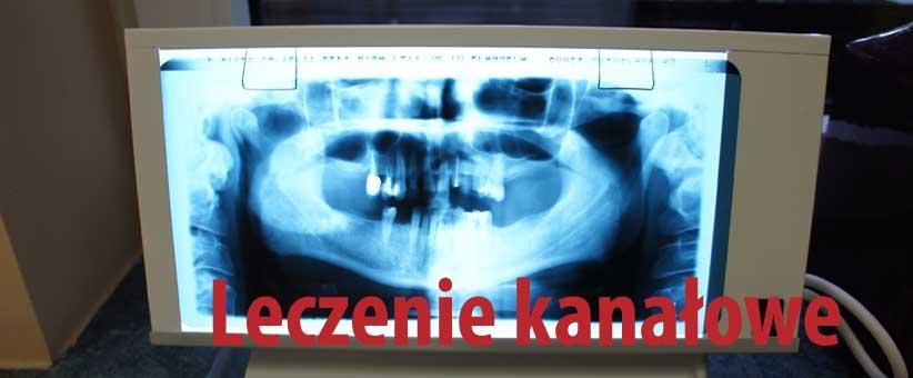 Co to jest Fleczer? Opatrunek tymczasowy (fleczer) Wrocław. Co to znaczy fleczer? Felczer jako opatrunek na zęba