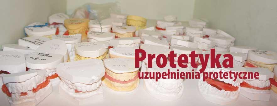 Protezy zębowe Wrocławiu - protezy stomatologiczne. Korony i mosty zębowe.