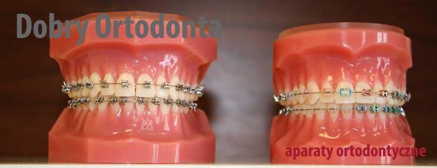 Estetyczny aparat na zęby - ortodoncja Wrocław. Przezroczyste aparaty na zębach - niewidoczny aparat ortodontyczny na zembach